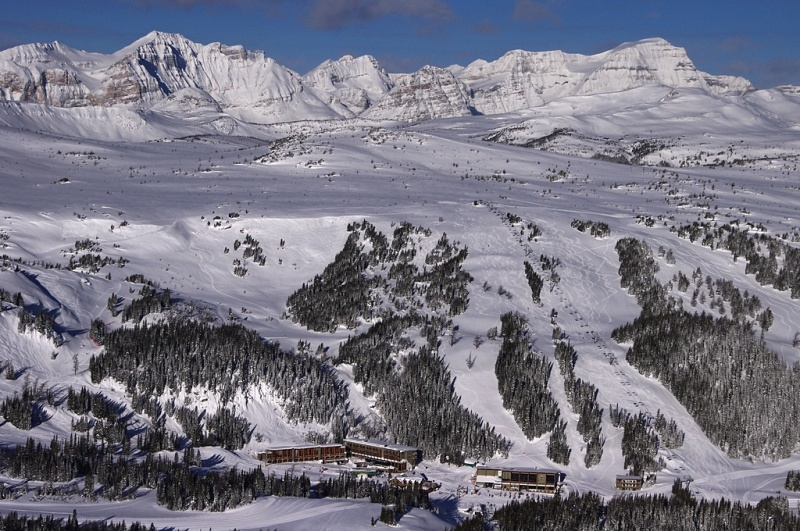Sunshine Village: Surrounded By The Rockies